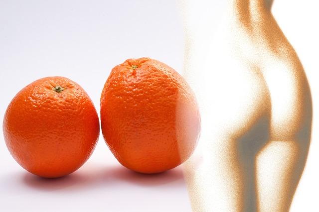 Cellulit - wstydliwy lecz odwracalny defekt urody